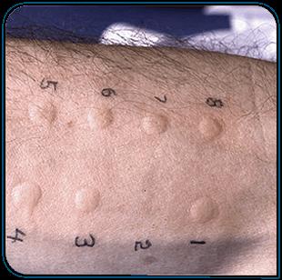 teste de alergia para rinite